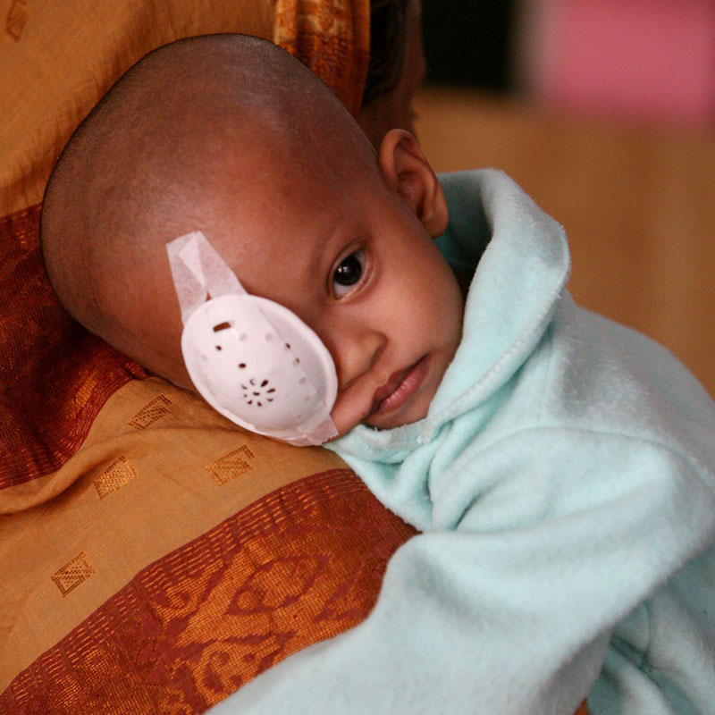 Baby with eye patch
